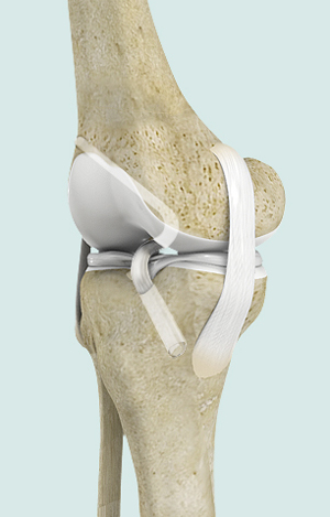 TAnterior Cruciate Ligament ACL Reconstruction